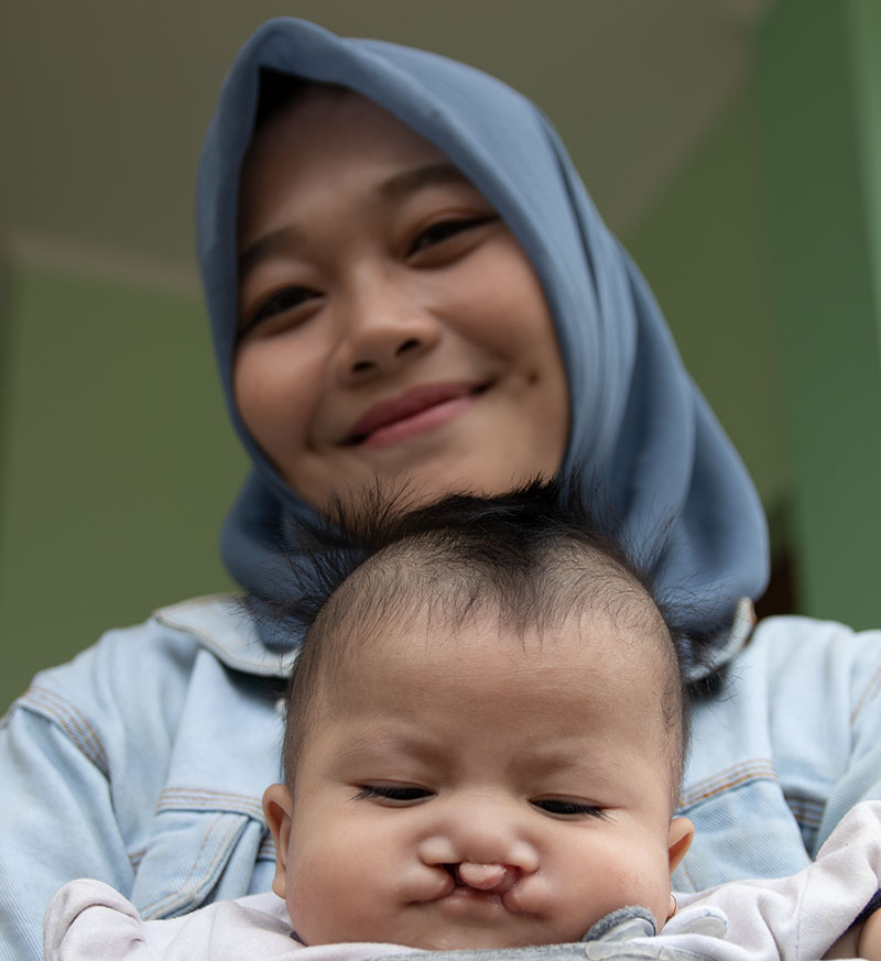 A mom holds her baby before cleft surgery