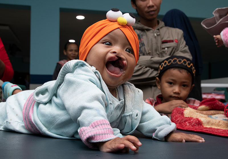 A baby before cleft surgery